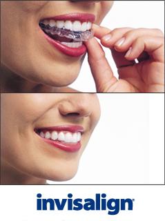 יישור שיניים ללא גשר בשיטת Invisallign