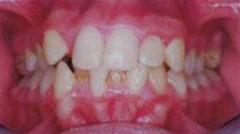 חוסר צפיפות במרווח השיניים